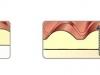 Сглобка на сандвич панел тип КЕРЕМИДА